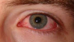 Աչքերը շատ բան կարող են ասել  ձեր հիվանդության մասին