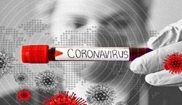 Նոր ռեկորդ. մեկ օրում կորոնավիրուսով վարակվածների 697 դեպք. Կա 15 մահ, որից 9-ը այլ հիվանդությունից